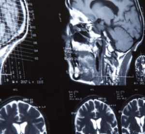 Profile Image of Brain Injuries